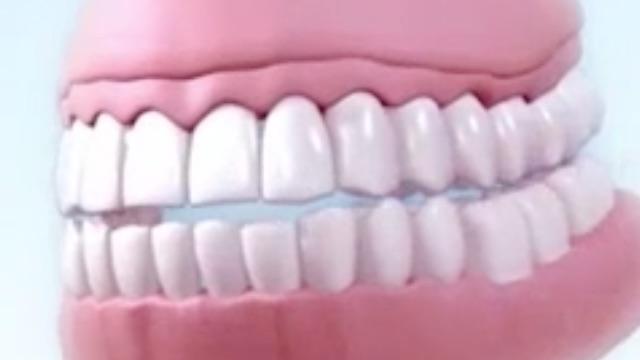 abszess am zahnfleisch